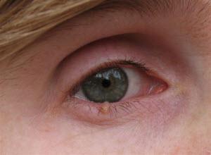 Папилломы на глазах