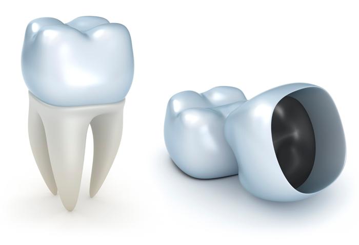 Изготовление и установка зубной коронки