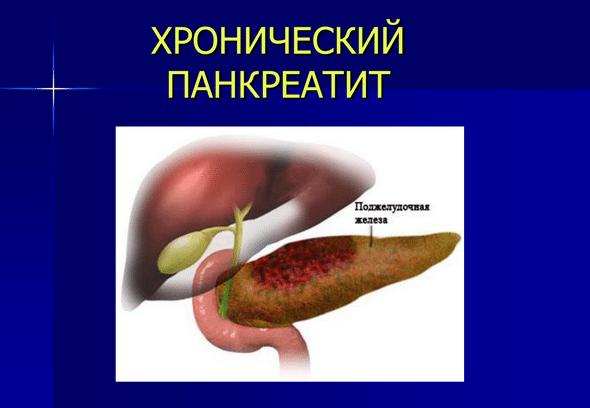 Примерное меню диеты при панкреатите поджелудочной железы, что можно кушать, а что нельзя