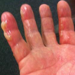 Что делать при ожоге пальца