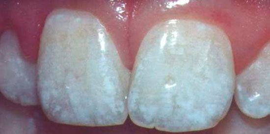 Простое и глубокое фторирование зубов