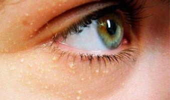 Как убрать жировик с глаза
