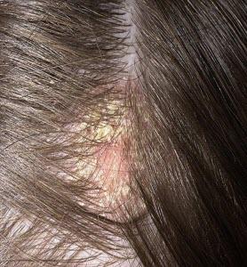 Шелушение кожи головы