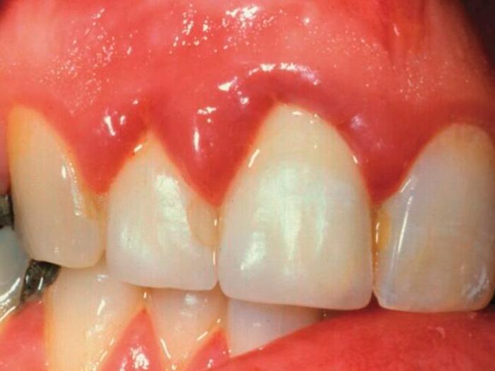 Боль в десне около зуба