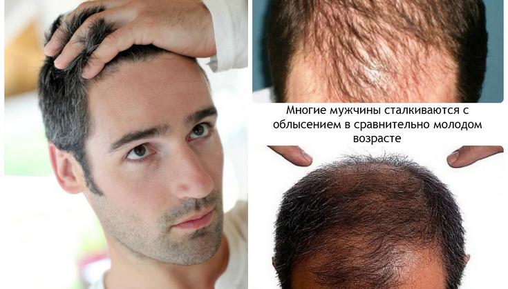 Выпадение волос у молодых мужчин