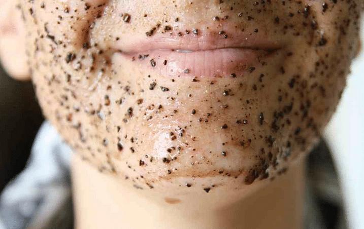 Чистка лица от черных точек в домашних условиях