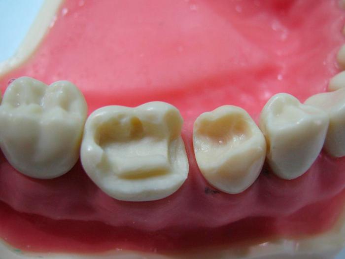 Как восстановить сломанный зуб