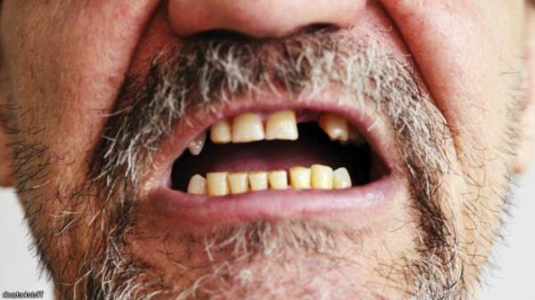 7 главных причин, почему крошатся зубы у взрослого человека