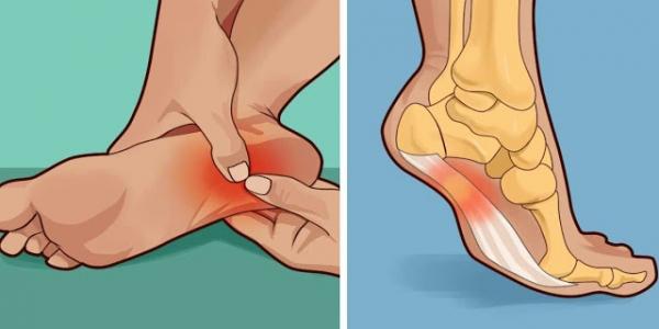Болят ноги при ходьбе