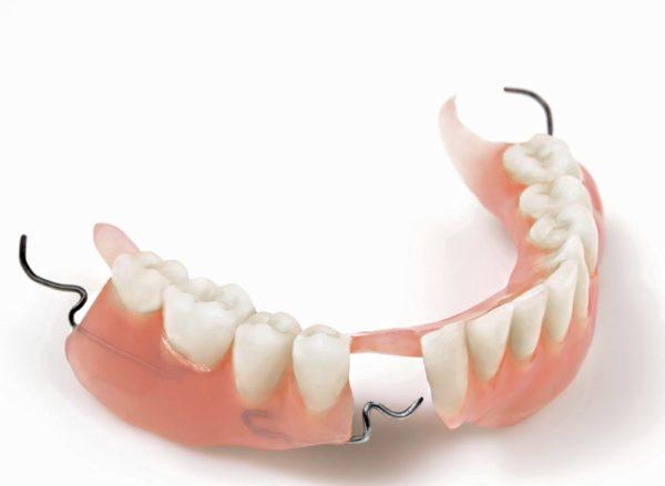 как починить зубной протез