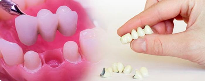 Частичное съемное протезирование зубов