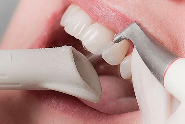 Удаление твердого зубного налета