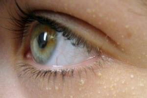 Жировик возле глаза
