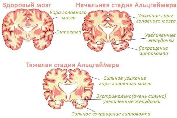 Болезнь Альцгеймера: что это такое, симптомы и признаки, причины возникновения и лечение