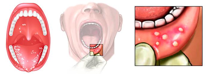 Причины и лечение стоматита у взрослых