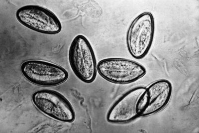Анализ кала на яйца глистов