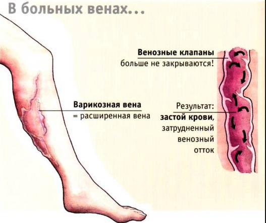 Рецепт приготовления настойки из каштанов от варикоза вен в домашних условиях, применение и лечебные свойства
