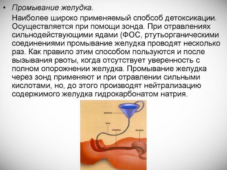 Что делают скорая и врачи в больнице при отравлении