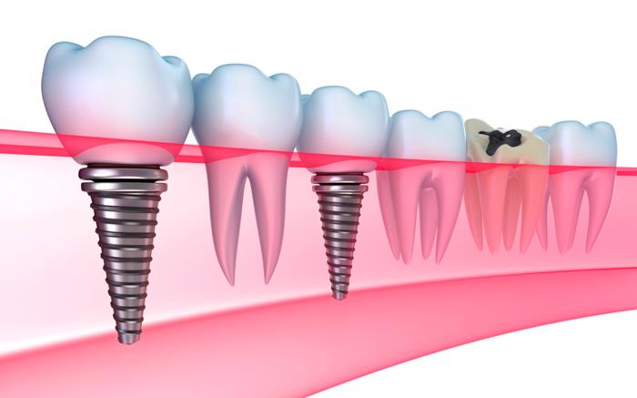 Как устанавливается условно-съемный протез на импланте