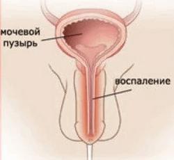 воспаление придатков у мужчин