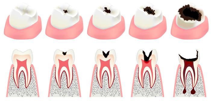 Боль в зубе после пломбирования корневого канала