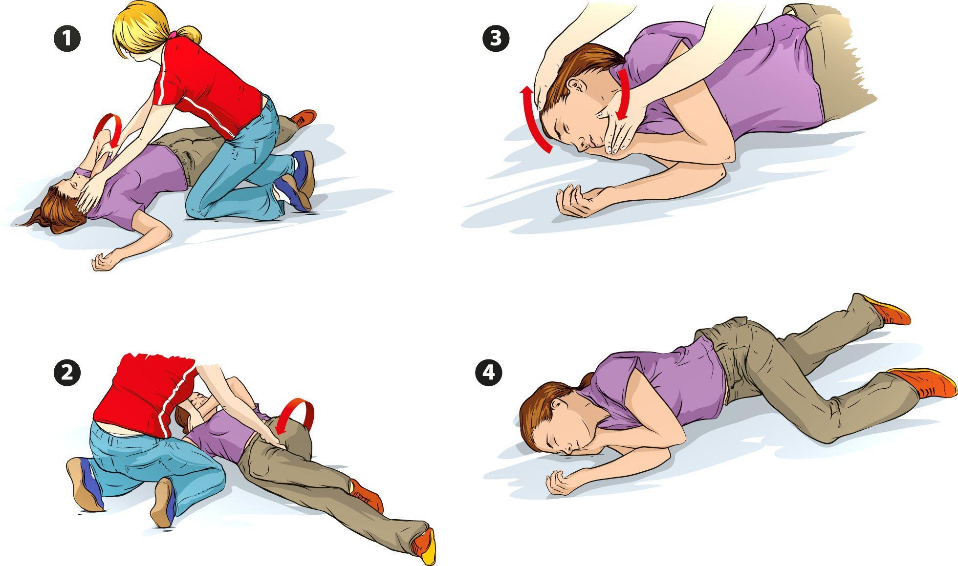 Инструкция по неотложной помощи при эпилептическом припадке