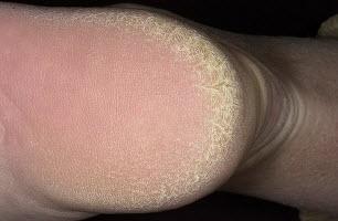 Грубая кожа на пятках
