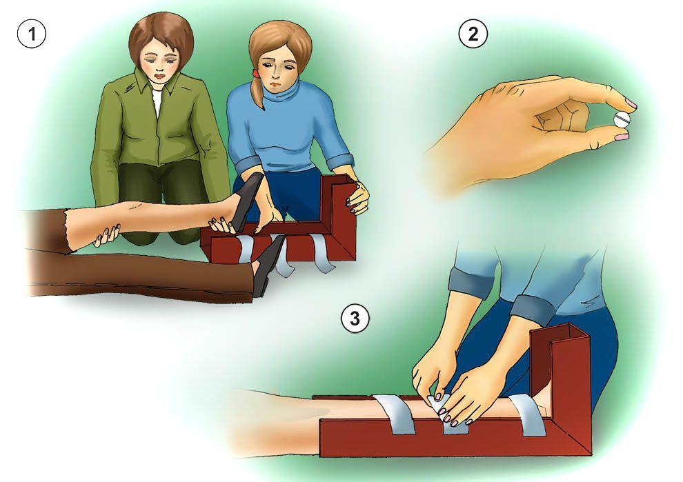 Первая помощь при переломах у детей