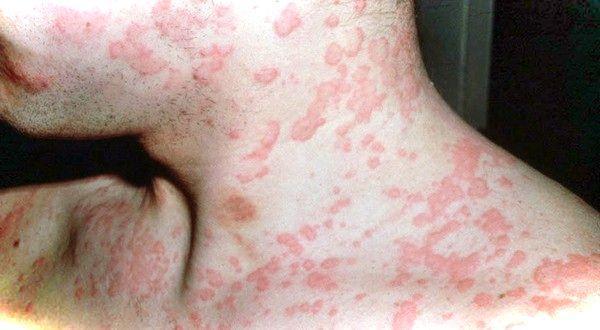 Помощь при аллергических реакциях