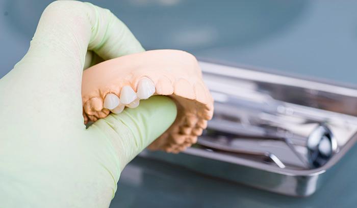 Протезирование жевательных зубов