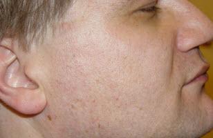 Заболевания кожи лица