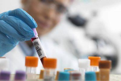 Анализ крови на герпес