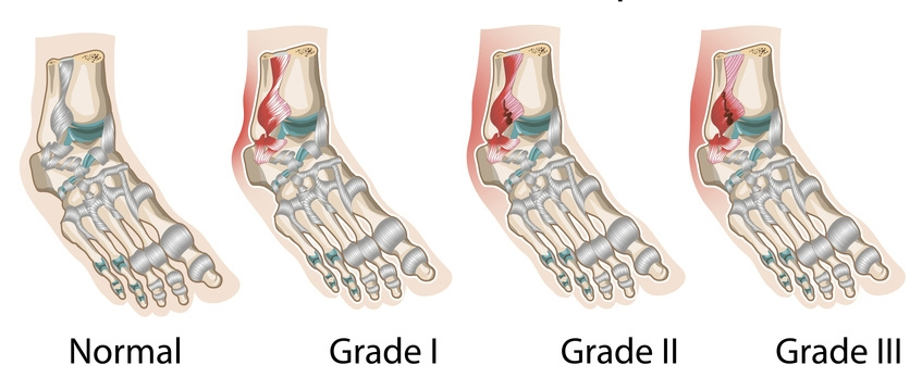 Что делать при растяжении щиколотки ноги