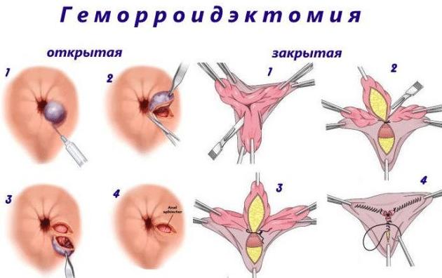 Геморроидэктомия