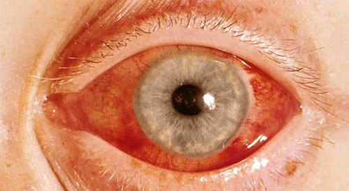 Глаукома причины, симптомы, лечение и профилактика, фото