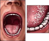 как выглядит молочница во рту