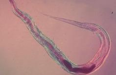 острица - возбудитель энтеробиоза