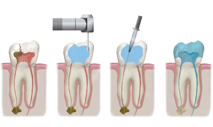 Лечение каналов зуба чистка и пломбирование