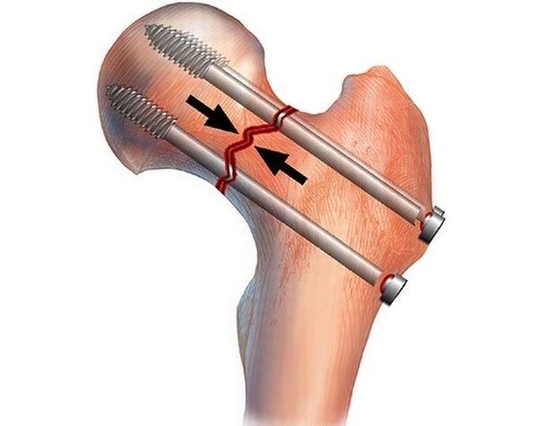 Переломы бедра, симптомы, первая помощь и лечение