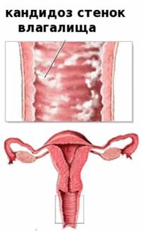 Симптомы кандидоза у беременных