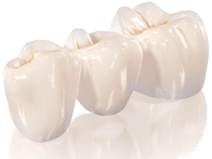 Виды и преимущества зубных коронок