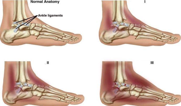 Причины, симптомы, первая помощь и лечение вывиха лодыжки