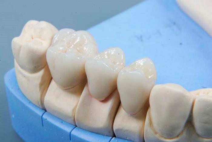 Что делать с больным зубом под коронкой