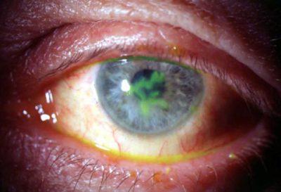 Герпес глаз