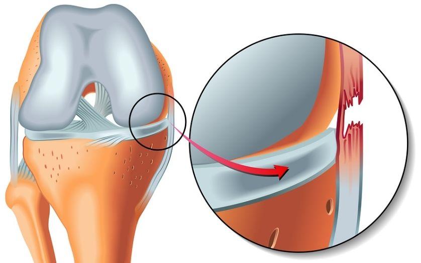 Как оказать первую помощь и диагностировать вывих колена