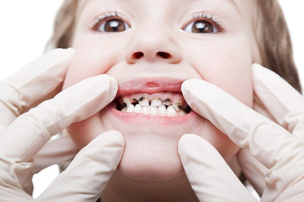Почему у детей чернеют молочные зубы?