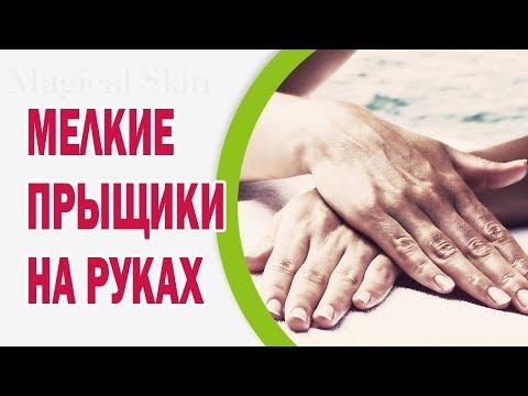 Характеристика герпеса на руках: особенности течения и лечение
