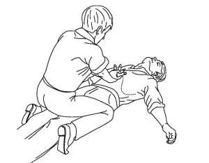 Что делать, если человек подавился – как оказать помощь