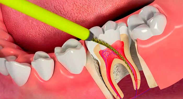 Как безболезненно убить зубной нерв