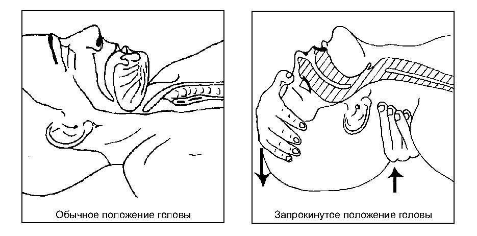 troinoi_priem